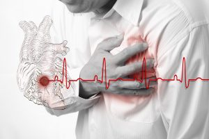 Symptoms of heart disease 1
