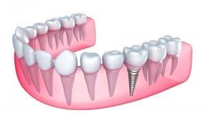 عملية زراعة الأسنان 2