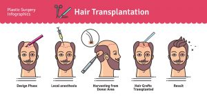 Methods Techniques used in hair transplantation in Turkey 2