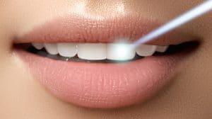 تبييض الأسنان بالليزر 2