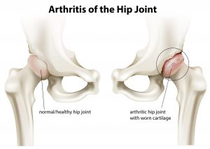 Hip Joint Replacement 1
