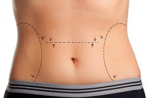 شفط الدهون 1